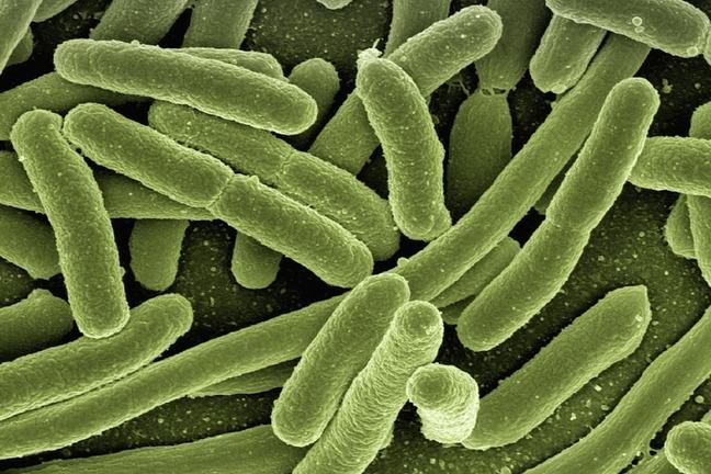 A photo of rod-shaped Escherichia coli bacteria viewed under a microscope.