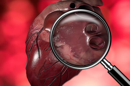 A computer generated representation of a human heart under a magnifying glass.