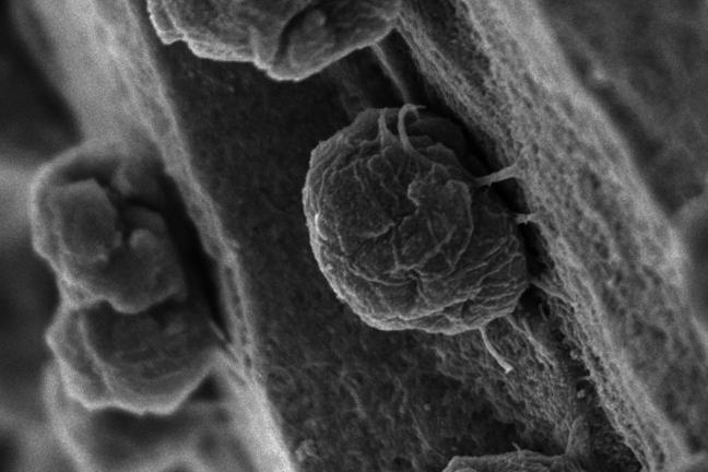 Methanococcus maripaludis