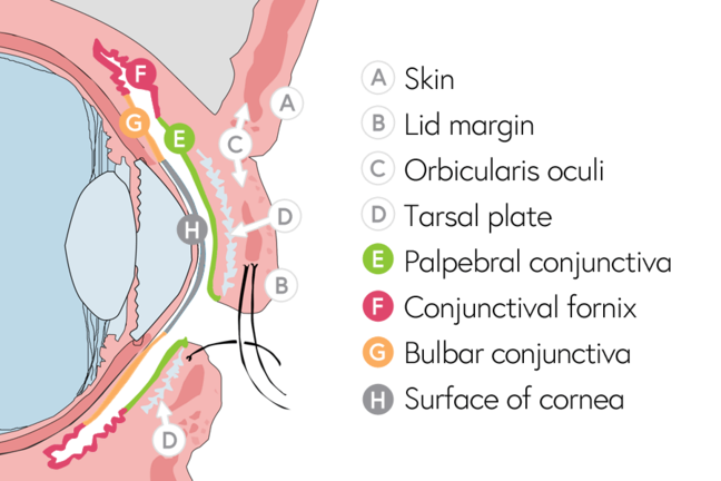 Anatomy of the eyelid showing where the lid margin, orbicularis oculi, tarsal plate and conjunctiva lie.