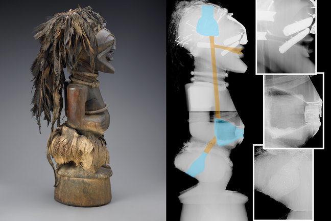 X-ray artefact