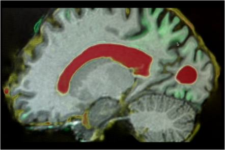 Brain image showing areas of shrinkage