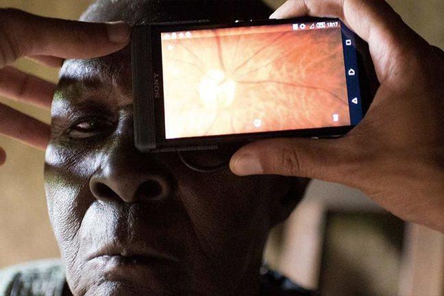 Examen des yeux en utilisant un smartphone