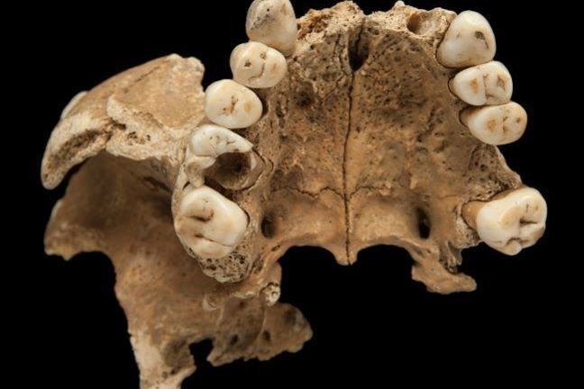 An upper jaw bone with several of the front teeth missing. The first molar on the person's right side also shows a large cavity from dental decay. On the left side the first molar has been lost during life, probably also due to dental decay.