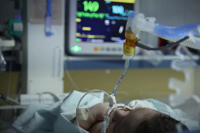 Close up of a preterm baby receiving monitored supplemental oxygen in the NICU