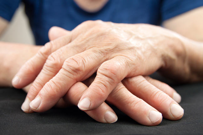 Hands with rheumatoid arthritis.