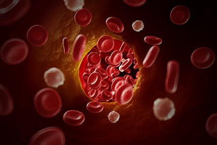 A representation of a blood clot.