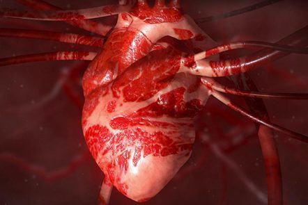 Heart Health - Online Course