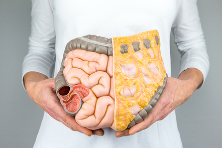 Woman holding model of human intestines in front of body.