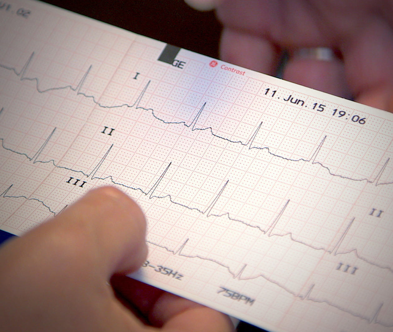 ECG Assessment: an Introduction for Healthcare Providers