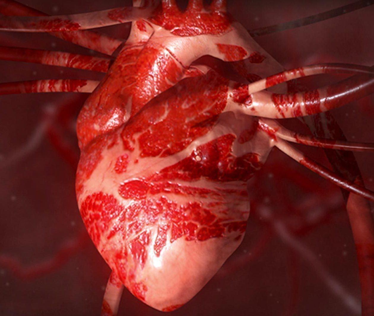 Heart Health: A Beginner's Guide to Cardiovascular Disease