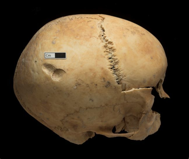 A skull with a peri-mortem depression fracture