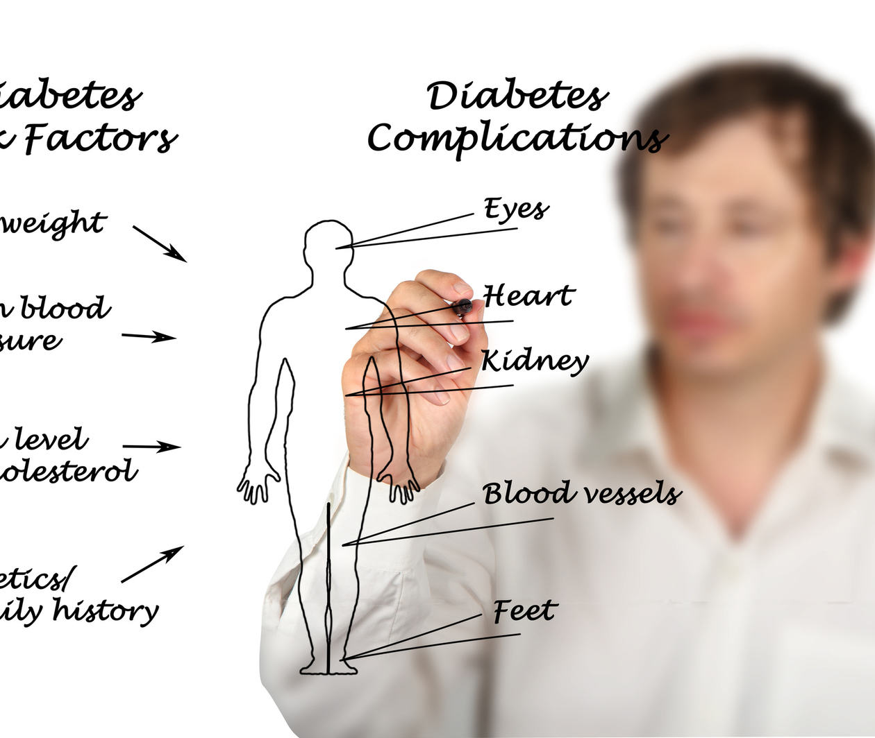 HND701.3 Complications of Type 2 Diabetes