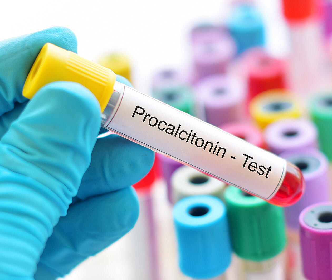 Procalcitonin: PCT as a Biomarker for Antimicrobial Stewardship