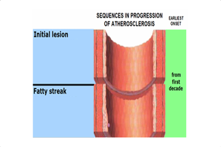 A schematic of an artery cut down the middle