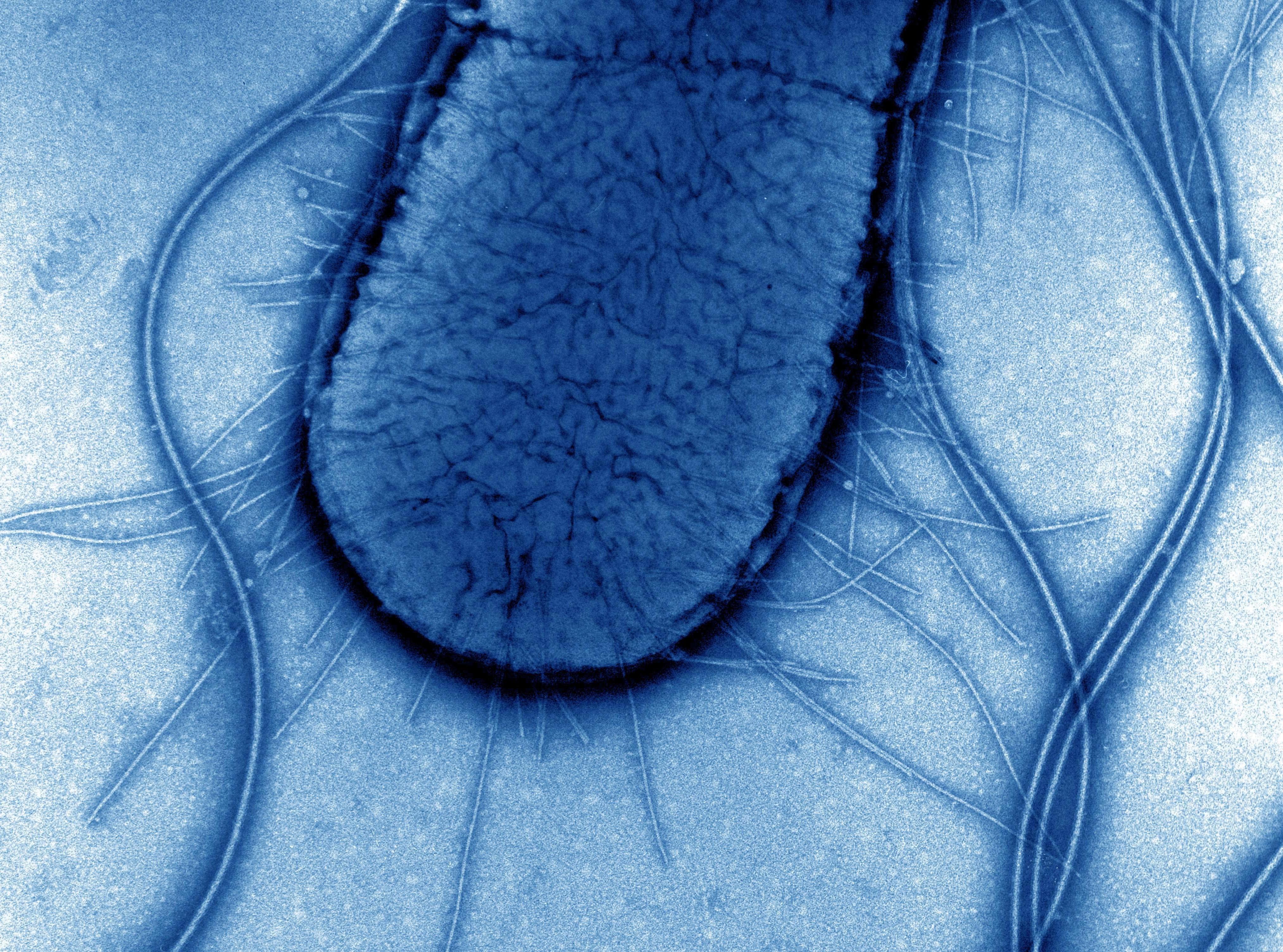 A transmission-electron microscopy image of an E. coli cell.