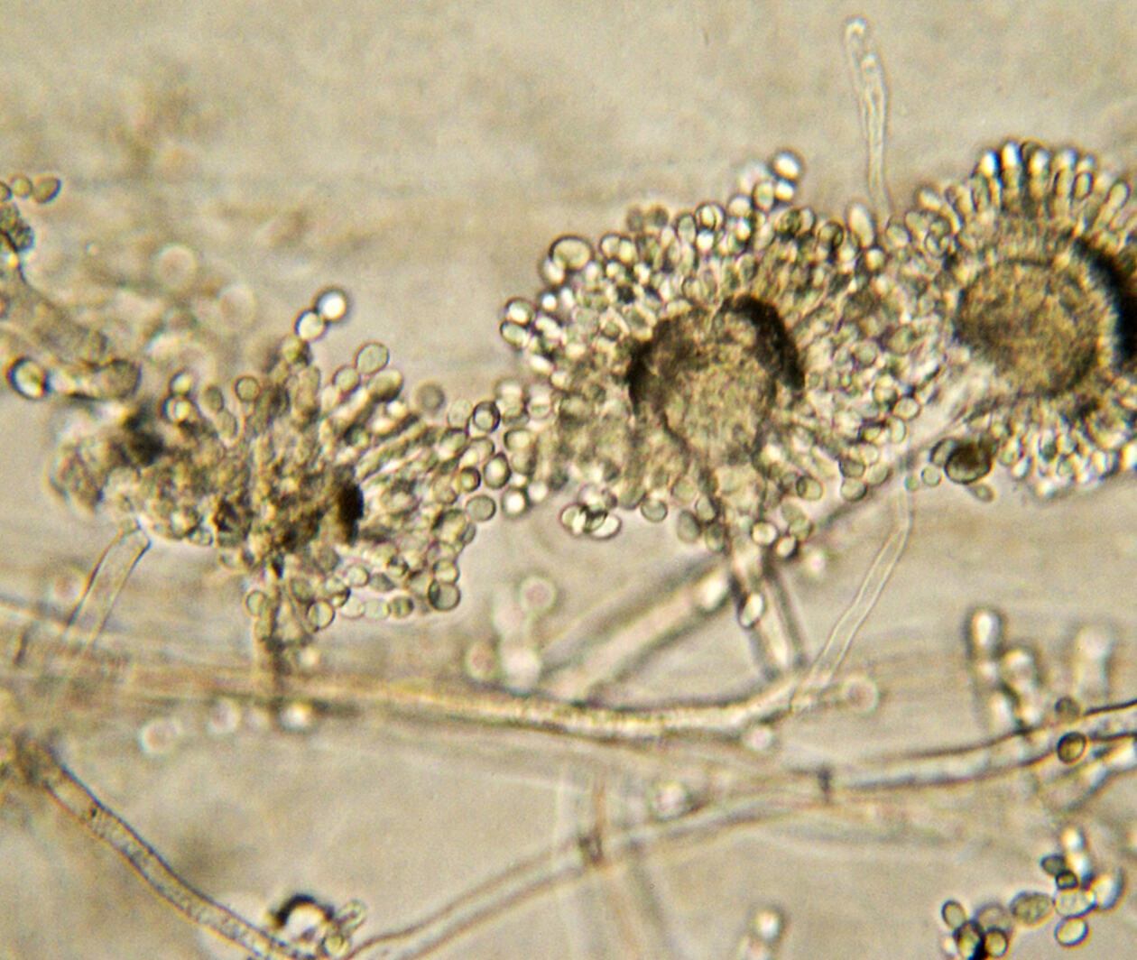 Fungal Diagnostics in Critically Ill Patients