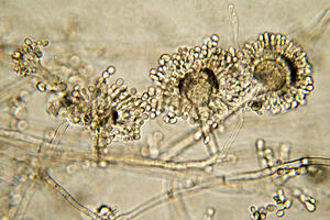 Aspergillus bread mould under a microscope