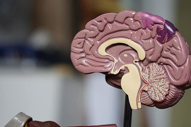 A model section of a brain