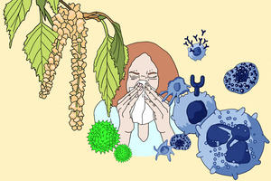 Illustration showing a flourishing birch tree and grass pollen on the left, and cells of the immune system on the right. In the background is a sneezing woman.