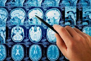 Scan of the human brain being used to diagnose Parkinson's disease