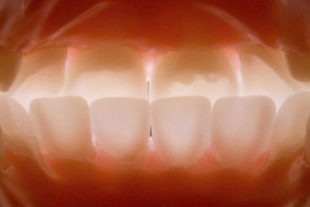 Improving your image: dental photography in practice