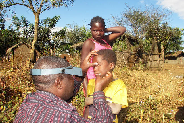 Examining a child for trachoma in the community