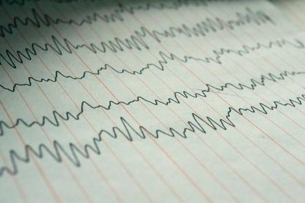 Electroencephalogram.