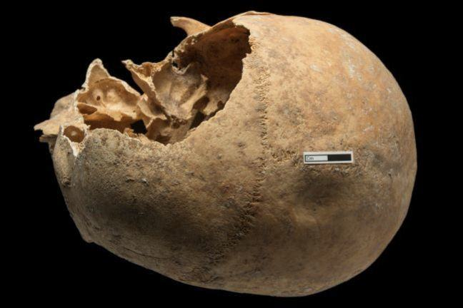 A skull with a depression fracture