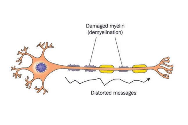 Diagram of demyelinated neurone.