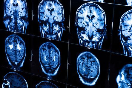 Human brain X-ray scan