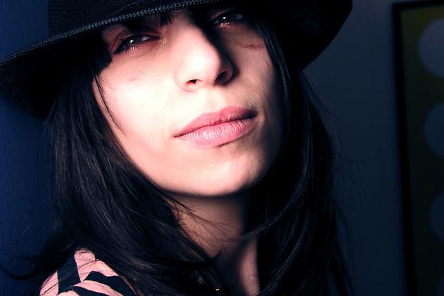 Vrouw met blauw oog