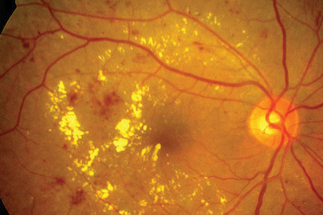 A fundus image of the retina of a person with diabetes