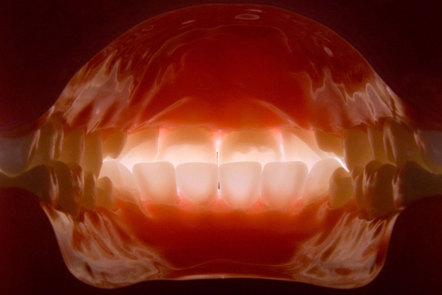 An intra-oral digital dental photograph