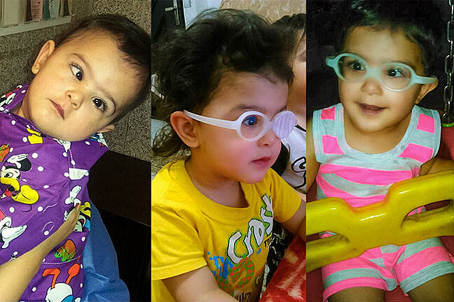 3 photos of a small girl at different stages, initially as a baby with a squint, as a toddler with occlusion pad over one eye over her spectacles and as a small child with spectacles - her squint has improved