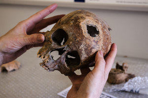 Archaeology: a human skull is examined in the lab.