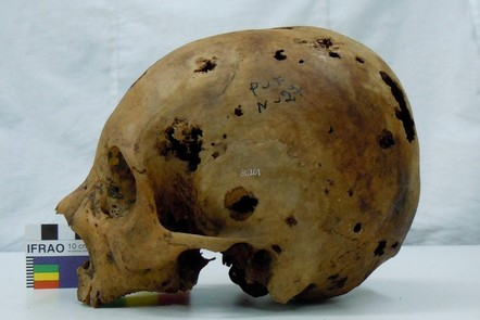 A cranium with lots of holes scattered throughout. These range in size from small to the size of a coin. These are caused by cancer (secondary metastatic carcinoma).