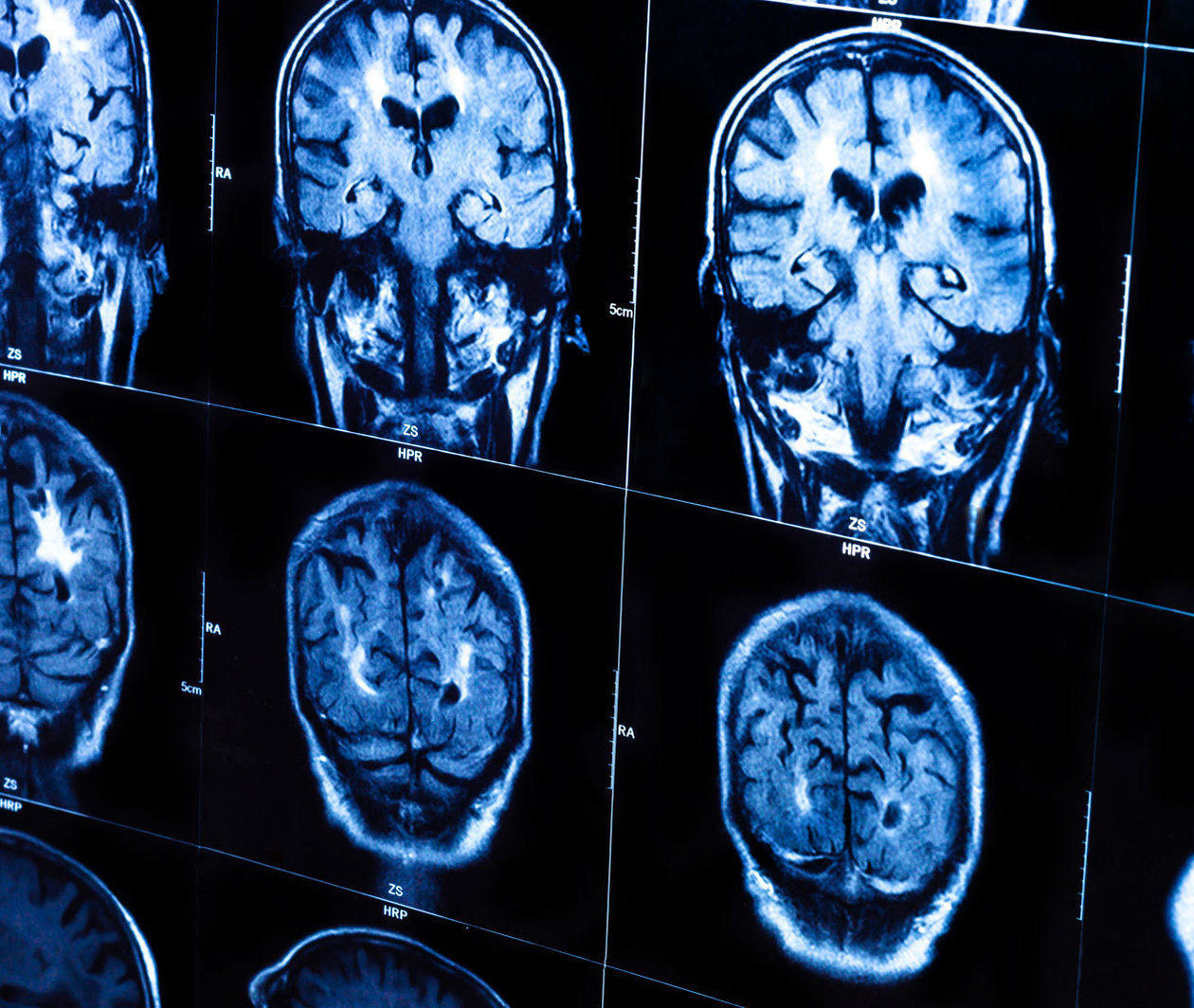 Good Brain, Bad Brain: Basics