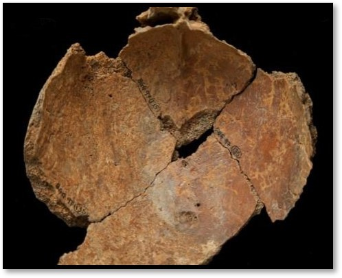 Inside surface of a piece of cranium that shows evidence of peri-mortem trauma