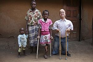 Image shows four people posing for camera, from left to right a child holding his mother's hand, an older female child using crutches, and a man using walking sticks.
