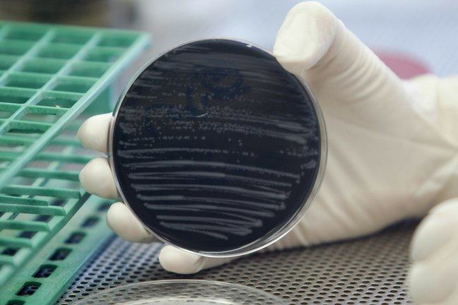 Legionella bacteria cultured in a laboratory