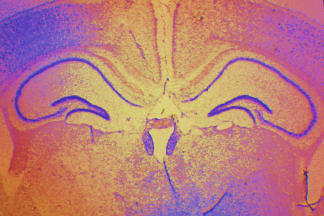 Hippocampus location