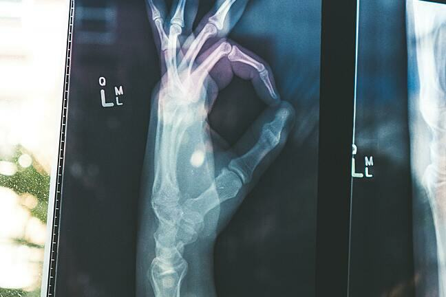 An image of an X-ray of a hand with the ok symbol being made by the hand. CITISCAN radiology written on the top left and OLLM next to the hand
