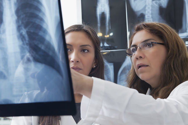 Two female doctors inspecting a chest x-ray