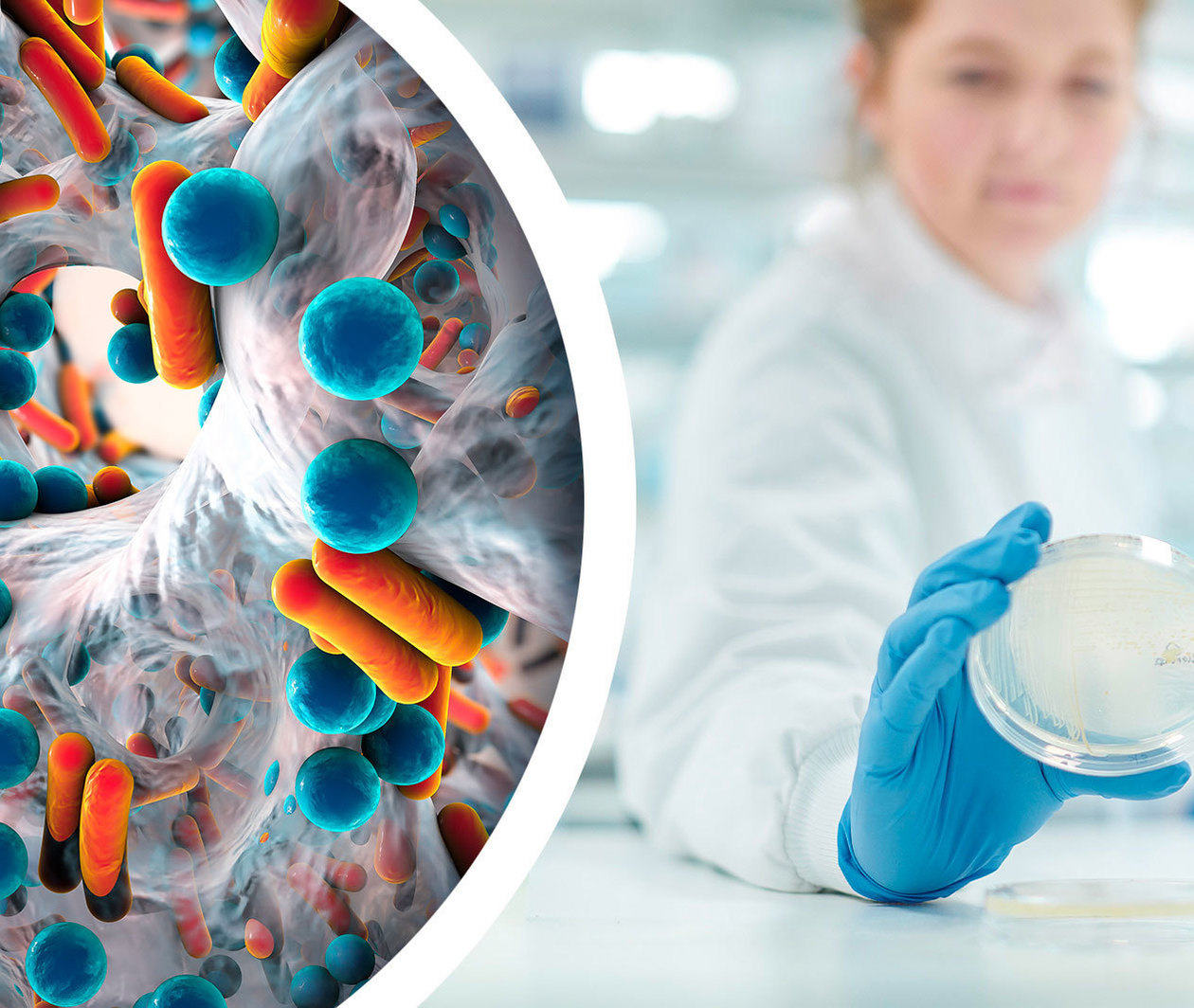 The Role of Diagnostics in the Antimicrobial Resistance Response